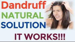 DIY Itchy Scalp Dandruff Treatment Natural Home Remedies Easy Dandruff Treatment