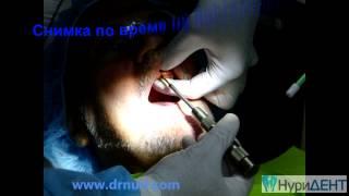Зъбни импланти София