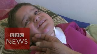 Iraq crisis: Disabled Yazidi refugee boy
