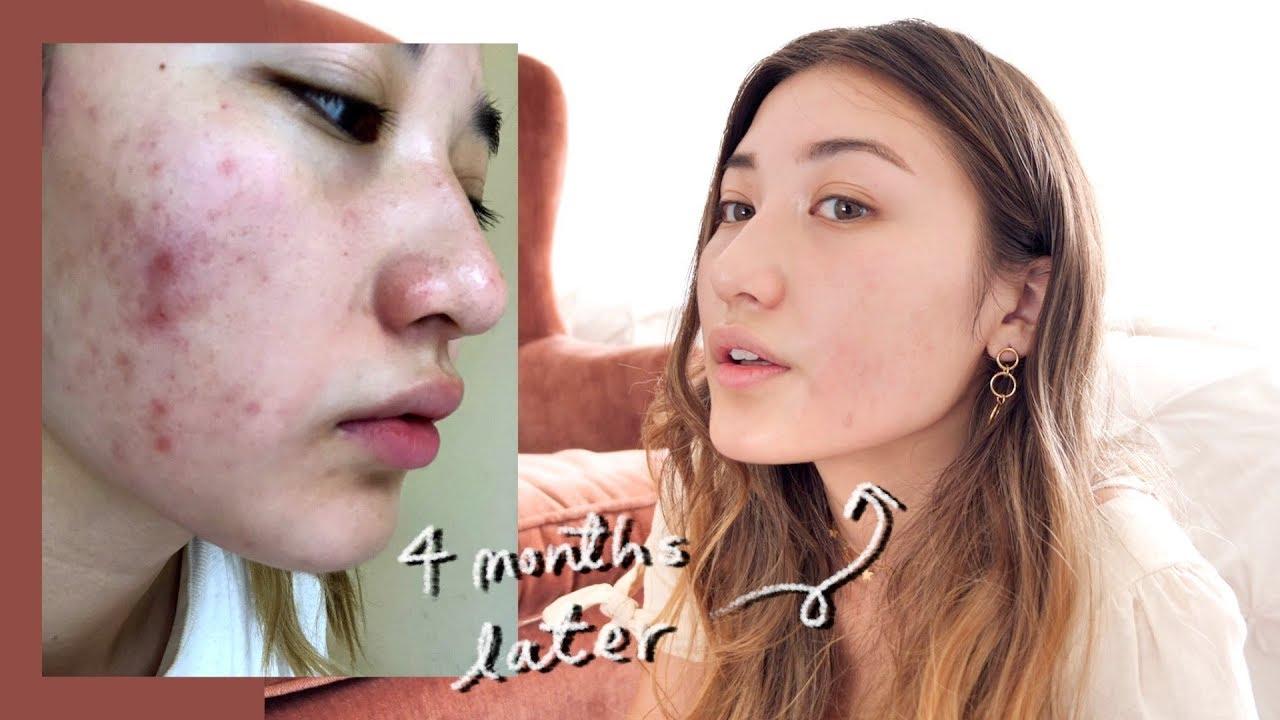 how i (fiNalLY) cleared my skin
