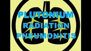 WIPP Lung: Hiding Plutonium  Pneumonitis