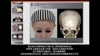 [H整形医院] 额头整形 (이마보형물을 통한 T존 안와상융기 성형수술)