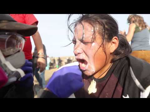 Female Water Protectors BRUTALIZED By Oil Police