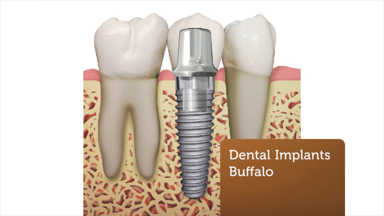 Southtowns Dental Implants in Buffalo, NY