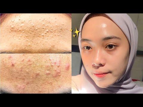 Chemical Peeling Natasha Skin Care Untuk Jerawat