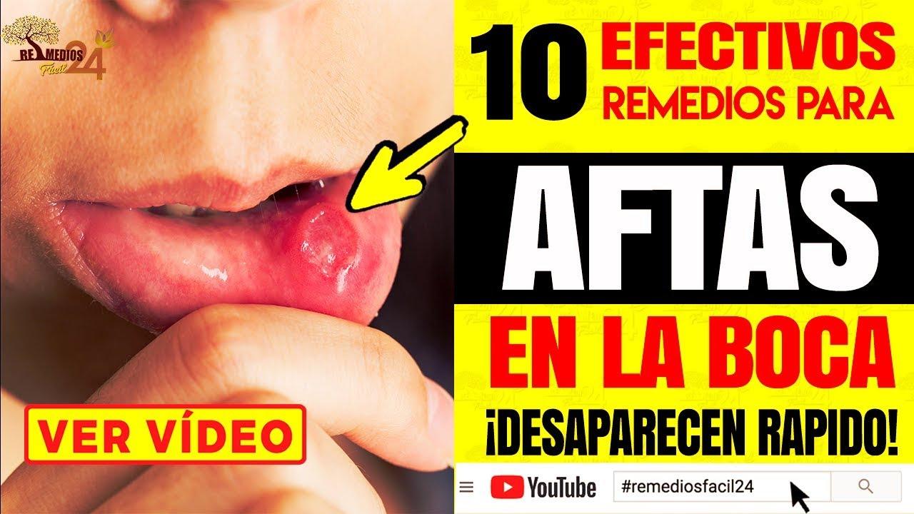 remedios caseros para los aftas en la boca