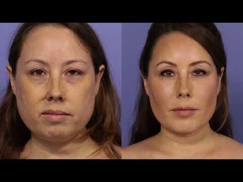 Cheek Augmentation At Stoker Plastic Surgery