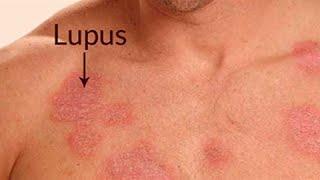 Combate El Lupus Naturalmente Con Remedios Caseros