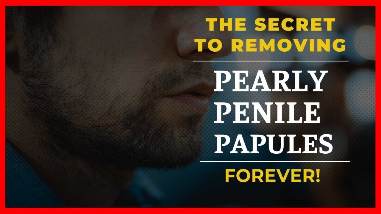 Pearly Penile Papules Diy Removal | Heres The Facts - YouTube