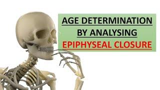 Age determination through epiphyseal closure of bones