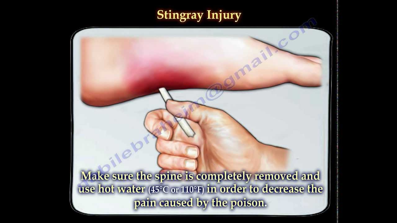 Stingray Fish Injury Everything You Need To Know Dr Nabil