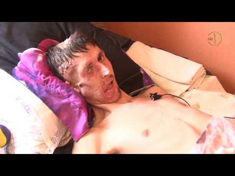 Спасая человека стал инвалидом. Герой Осман Османов