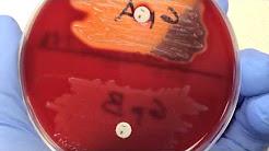 Microbiology - Bacitracin
