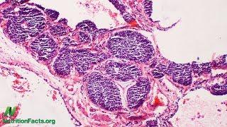 Jak nádory využívají maso ke svému růstu: Xeno-autoprotilátky