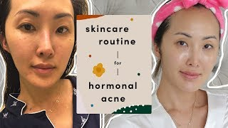How I Deal with My Hormonal Acne | Chriselle Lim