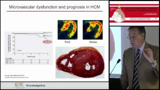 P Camici   Pathophysiology of pf coronary microvascular dysfunction in primary and secondary LVH