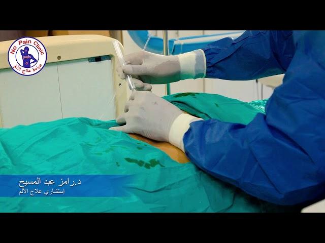 تحجيم نواه الغضروف بالكوبليشين بدون جراحه. كيف تعالج الانزلاق الغضروفي بدون جراحه