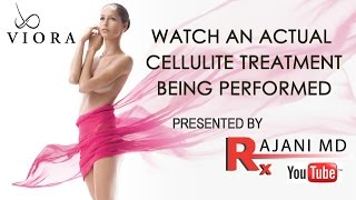 Viora Cellulite Treatment