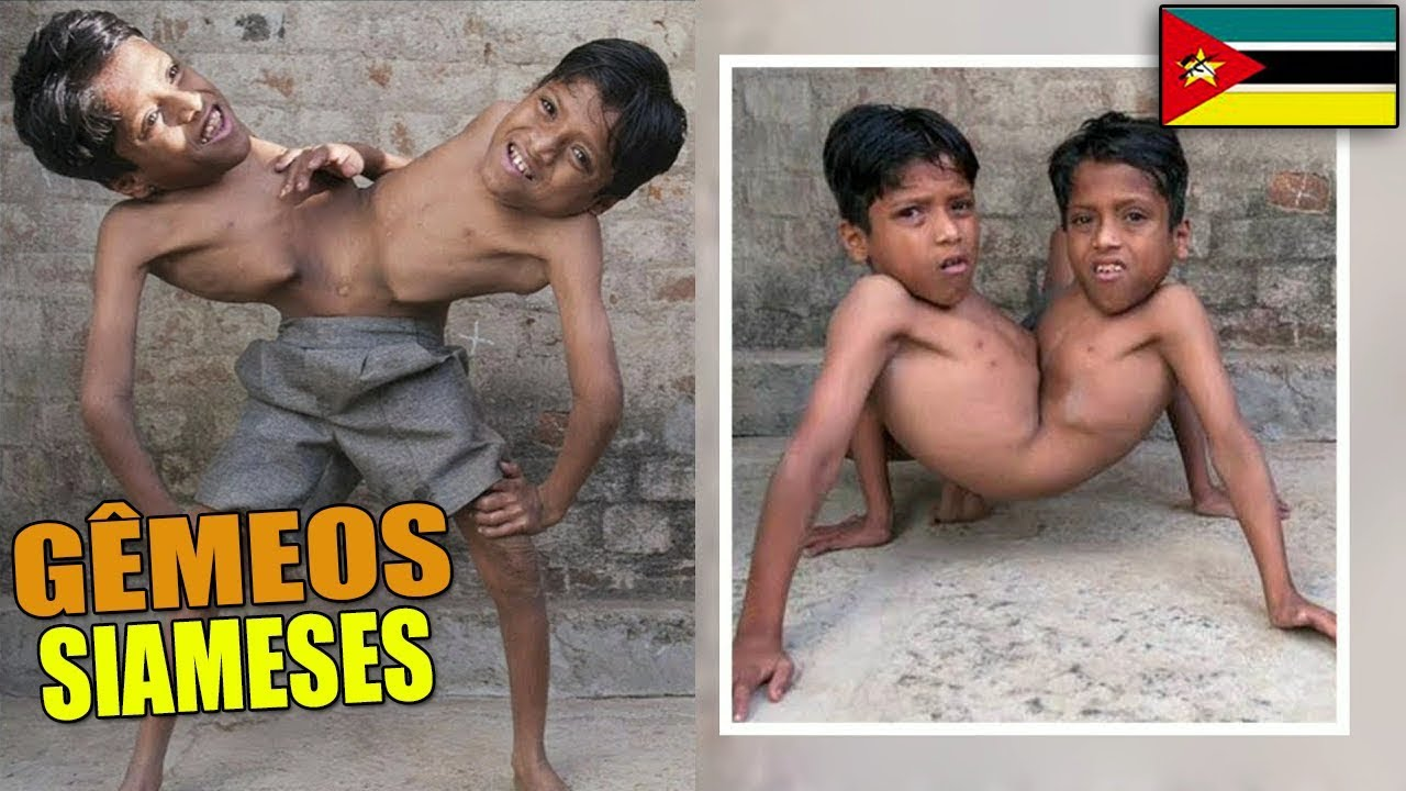 4 IRMÃOS QUE VIVEM NO MESMO CORPO (Gêmeos Siameses) !!!