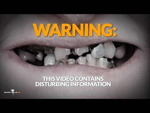 Pembeli Waspadalah! Anda Tidak Akan Pernah Melihat Gigi Veneer Atau Dokter Gigi Kosmetik Sama!