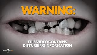Buyer Beware! You'll Never Look at Dental Veneers or Cosmetic Dentists Smile Makeovers the Same!