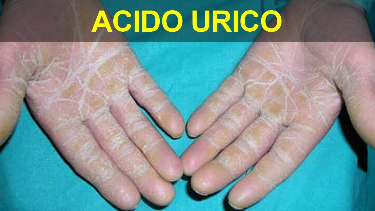 verduras que no producen acido urico cloruro magnesio para acido urico