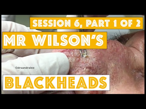 Mr Wilsons Blackheads Session 6 Part 1 Of 2 Merry