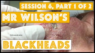 Mr Wilson's Blackheads! Session 6, Part 1 of 2  Merry Christmas!!