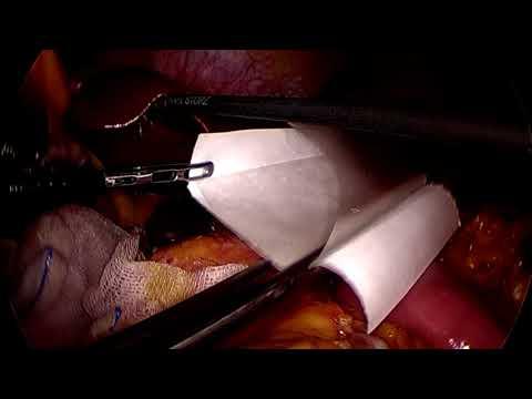Seprafilm Laparoscopic applier in Gastrectomy