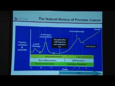 Рак предстательной железы - симптомы, лечение