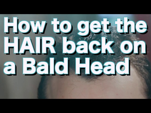 What to do if you are going Bald?