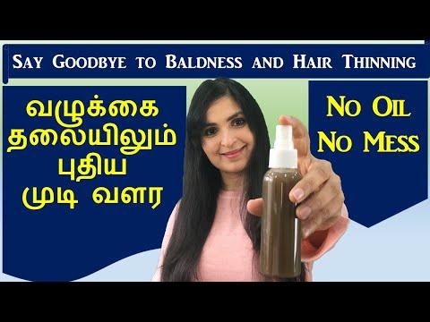 முடி உதிர்வை நிறுத்தி அடர்த்தியாக வளர செய்யும்  / Hair Growth Spray / Chennai Girl In London
