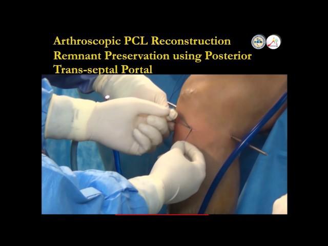 Arthroscopic PCL PLC reconstruction How I do, Bancha Chernchujit, ??.????? ???????????