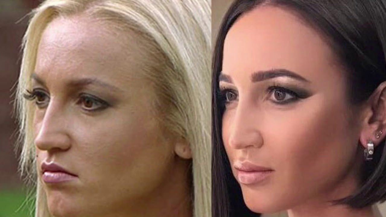 после пластики фото до и после