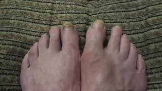 Медицина ( Опухла косточка на ноге.  Чем обезболить?)