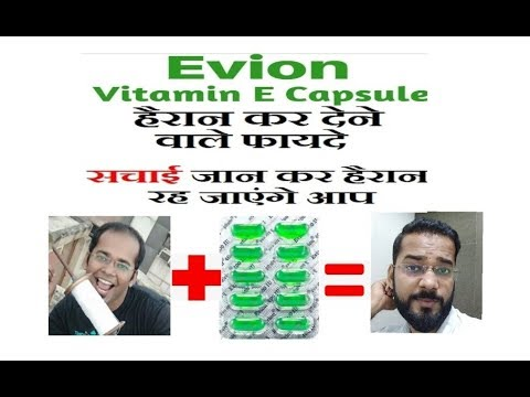 कब ROHIT SHETTY ने HAIR TRANSPLANT किया || CASE STUDY || BOLLYWOOD ACTOR HAIR TRANSPLANT from YouTube · Duration:  4 minutes 56 seconds