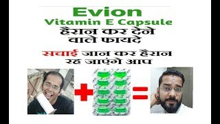 Evion 400 Vitamin E Capsules : How to Re Grow Hair & Stop Hair Fall