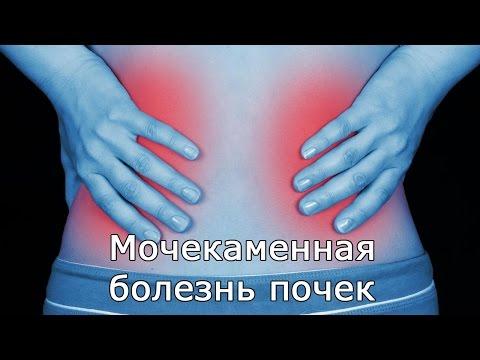 Мочекаменная болезнь почек: симптомы, причины