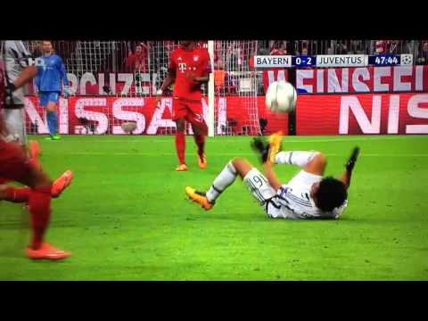 Vidal fight Bayern Juventus 16/03/2016
