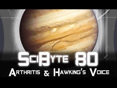 Arthritis & Hawking's Voice | SciByte 80