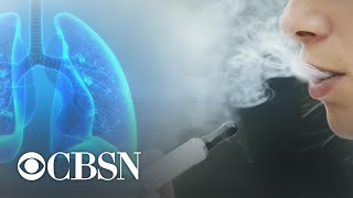 Health officials investigate link between vaping and lung illnesses