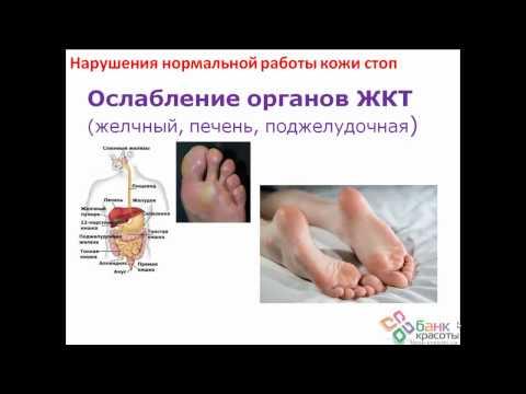 Как лечить натоптыши на ногах (подошве, ступнях и пальцах)