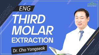 [ENG] Introduction of Third Molar Extraction [#Dentalbean]