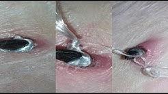 Removing Skin Tag At Home With FLOSS (DIY/VLOG)