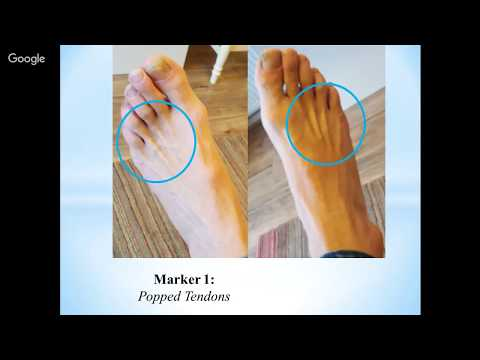 Foot Reading Video 1-12-18