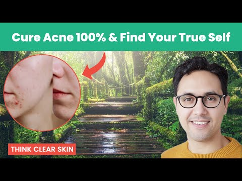 Meditation For Acne (That Works)