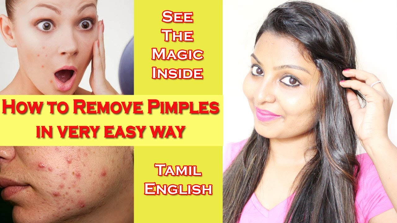 how to clear pimples fast in tamil