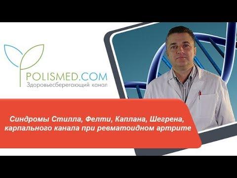 синдромы при ревматоидном артрите