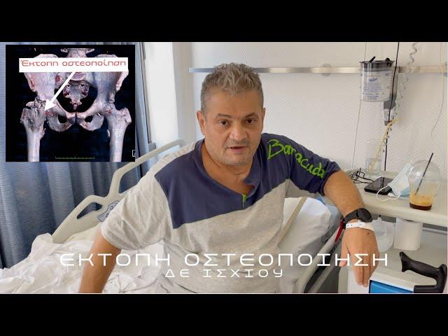 Αποκατάσταση φυσιολογικής κίνησης μετά από αφαίρεση έκτοπης οστεοποίησης από αγκυλωμένο ισχίο
