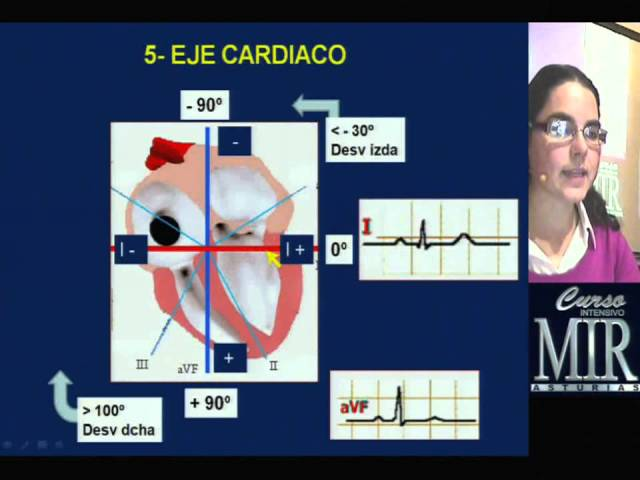 Como interpretar un ECG. Curso Intensivo MIR